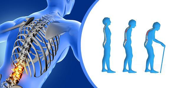 """""""الصحة"""" تعرّف بمرض هشاشة العظام أسبابه وأعراضه وطرق الوقاية منه"""