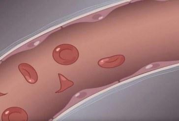 دراسة تكشف وجود علاقة بين الإصـابة بالسرطان وحالة الأوعية الدمـوية