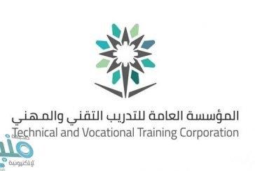 التدريب التقني بالباحة ينهي قبول أكثر من 1470 متدرباً ومتدربة