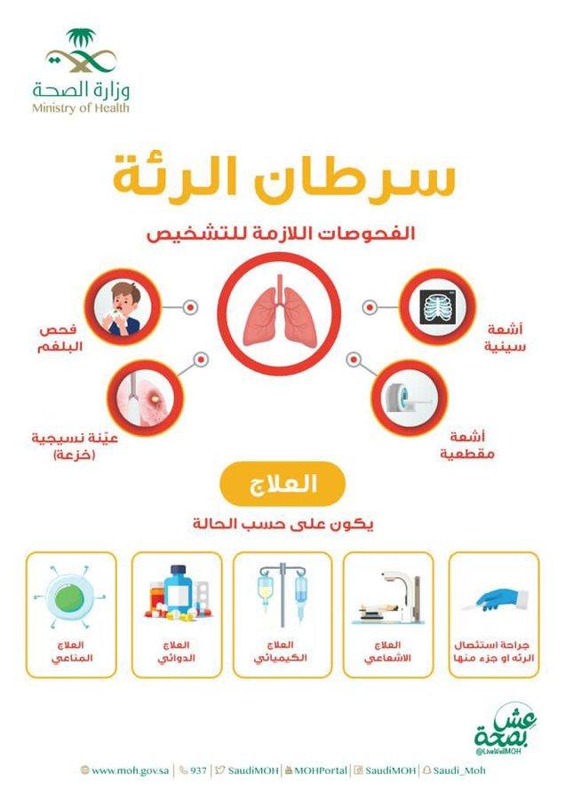 مستشفى شرق جدة يفعل اليوم العالمي لسرطان الرئة