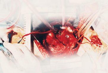 نجاح عمليه قلب مفتوح نوعية استغرقت ١٢ ساعة لخمسيني بمجمع الملك عبدالله الطبي في جدة
